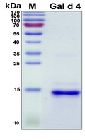 LYZ / Lysozyme Protein - SDS-PAGE under reducing conditions and visualized by Coomassie blue staining
