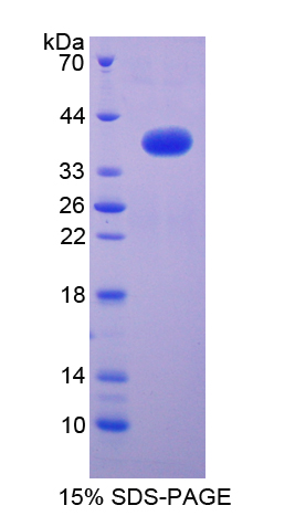 NFKB2 Protein - Recombinant  Nuclear Factor Kappa B2 By SDS-PAGE