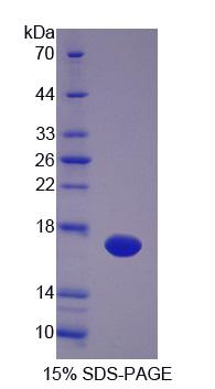 VEGFC Protein - Recombinant  Vascular Endothelial Growth Factor C By SDS-PAGE