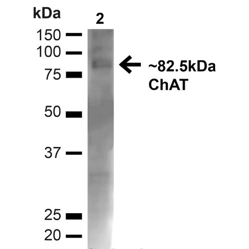 Choline Acetyltransferase Antibody - Western blot analysis of Mouse Brain showing detection of ~82.5kDa Choline Acetyltransferase protein using Rabbit Anti-Choline Acetyltransferase Polyclonal Antibody. Lane 1: MW Ladder. Lane 2: Mouse Brain (20 µg). Load: 20 µg. Block: 5% milk + TBST for 1 hour at RT. Primary Antibody: Rabbit Anti-Choline Acetyltransferase Polyclonal Antibody  at 1:1000 for 1 hour at RT. Secondary Antibody: Goat Anti-Rabbit: HRP at 1:2000 for 1 hour at RT. Color Development: TMB solution for 12 min at RT. Predicted/Observed Size: ~82.5kDa.