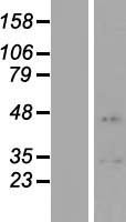 Chondroadherin / CHAD Protein - Western validation with an anti-DDK antibody * L: Control HEK293 lysate R: Over-expression lysate