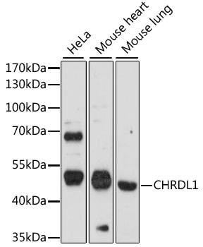 CHRDL1 Antibody - Western blot analysis of extracts of various cell lines, using CHRDL1 antibody at 1:1000 dilution. The secondary antibody used was an HRP Goat Anti-Rabbit IgG (H+L) at 1:10000 dilution. Lysates were loaded 25ug per lane and 3% nonfat dry milk in TBST was used for blocking. An ECL Kit was used for detection and the exposure time was 90s.