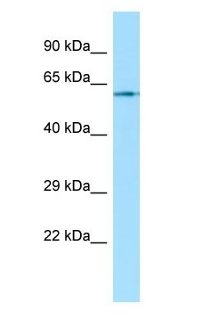 CHRM1 / M1 antibody Western Blot of Fetal Bladder.  This image was taken for the unconjugated form of this product. Other forms have not been tested.