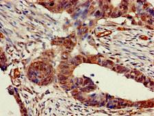 CHRNB1 Antibody - Immunohistochemistry of paraffin-embedded human colon cancer at dilution of 1:100