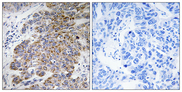 Immunohistochemistry analysis of paraffin-embedded human lung carcinoma tissue, using CHST10 Antibody. The picture on the right is blocked with the synthesized peptide.