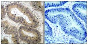 IHC of paraffin-embedded human colon carcinoma, using IKK-alpha (Phospho-Thr23) Antibody. The picture on the right is treated with the synthesized peptide.