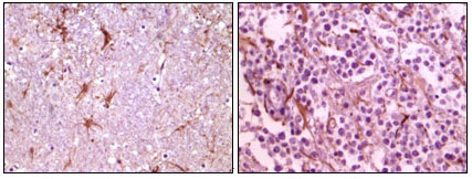 CIB1 / KIP Antibody - IHC of paraffin-embedded human thalamus (left) and glioma (right) tissue, showing membrane localization using CIB1 mouse monoclonal antibody with DAB staining.