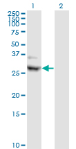 CIDEA / CIDE-A Antibody - Western Blot analysis of CIDEA expression in transfected 293T cell line by CIDEA monoclonal antibody (M01), clone 4B9.Lane 1: CIDEA transfected lysate(28.3 KDa).Lane 2: Non-transfected lysate.
