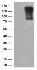 CIITA Antibody - HEK293T cells were transfected with the pCMV6-ENTRY control. (Left lane) or pCMV6-ENTRY CIITA. (Right lane) cDNA for 48 hrs and lysed. Equivalent amounts of cell lysates. (5 ug per lane) were separated by SDS-PAGE and immunoblotted with anti-CIITA. (1:500)