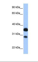 CITED2 Antibody - Fetal brain lysate. Antibody concentration: 1.0 ug/ml. Gel concentration: 12%.  This image was taken for the unconjugated form of this product. Other forms have not been tested.