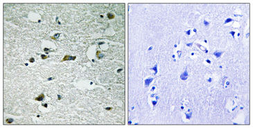 CKI-Gamma 1+2+3 Antibody - Immunohistochemistry analysis of paraffin-embedded human brain, using CK-1 gamma1/2/3 (Phospho-Tyr263) Antibody. The picture on the right is blocked with the phospho peptide.