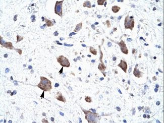 CLCN3 antibody ARP35504_T100-NP_776297-CLCN3 (chloride channel 3) Antibody was used in IHC to stain formalin-fixed, paraffin-embedded human brain.  This image was taken for the unconjugated form of this product. Other forms have not been tested.
