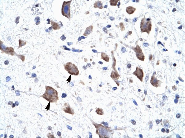 CLCN3 antibody LS-C31442 was used in IHC to stain formalin-fixed, paraffin-embedded human brain.  This image was taken for the unconjugated form of this product. Other forms have not been tested.