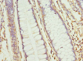 Immunohistochemistry of paraffin-embedded human colon cancer at dilution 1:100