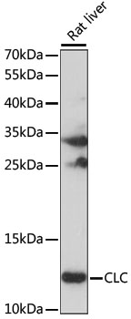 CLC Antibody - Western blot analysis of extracts of Rat liver, using CLC antibody at 1:1000 dilution. The secondary antibody used was an HRP Goat Anti-Rabbit IgG (H+L) at 1:10000 dilution. Lysates were loaded 25ug per lane and 3% nonfat dry milk in TBST was used for blocking. An ECL Kit was used for detection and the exposure time was 10S.