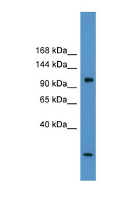 CLCN1 / CLC-1 antibody Western blot of Rat Brain lysate. This image was taken for the unconjugated form of this product. Other forms have not been tested.