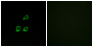 Immunofluorescence analysis of HUVEC cells, using CLCN4 Antibody. The picture on the right is blocked with the synthesized peptide.