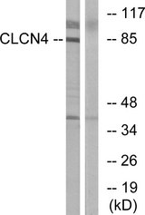 Western blot analysis of lysates from MCF-7 cells, using CLCN4 Antibody. The lane on the right is blocked with the synthesized peptide.