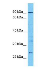 Western blot of CLCN4 Antibody with human 721_B Whole Cell lysate.  This image was taken for the unconjugated form of this product. Other forms have not been tested.