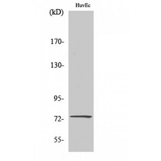 Western blot of CLC-KA antibody