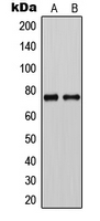 Western blot analysis of CLCNKA expression in HeLa (A); rat liver (B) whole cell lysates.