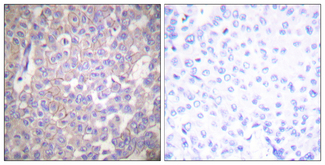 Immunohistochemistry analysis of paraffin-embedded human breast carcinoma tissue, using Claudin 2 Antibody. The picture on the right is blocked with the synthesized peptide.