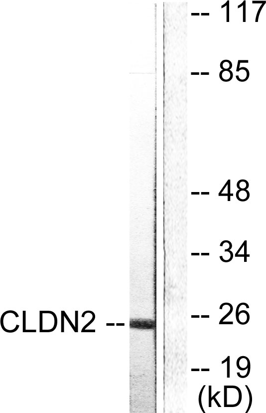 Western blot analysis of lysates from NIH/3T3 cells, using Claudin 2 Antibody. The lane on the right is blocked with the synthesized peptide.