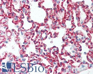 Anti-CLDN5 / Claudin 5 antibody IHC of rat lung. Immunohistochemistry of formalin-fixed, paraffin-embedded tissue after heat-induced antigen retrieval. Antibody LS-B2331 concentration 10 ug/ml.