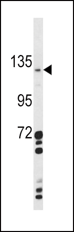 Western blot of CLEC16A Antibody in A2058 cell line lysates (35 ug/lane). CLEC16A (arrow) was detected using the purified antibody.