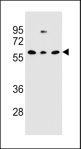 CLEC17A Antibody western blot of NCI-H460,293,MDA-MB231 cell line lysates (35 ug/lane). The CLEC17A Antibody detected the CLEC17A protein (arrow).