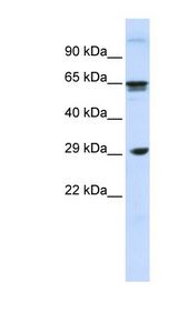 CLEC4M / CD299 antibody Western blot of Fetal Muscle lysate. This image was taken for the unconjugated form of this product. Other forms have not been tested.