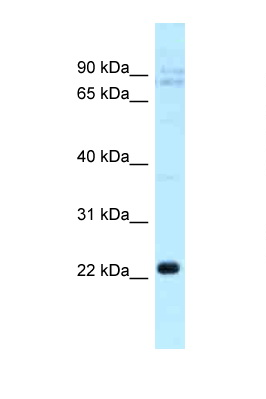 CLEC5A antibody LS-C145884 Western blot of COL0205 Cell lysate. Antibody concentration 1 ug/ml.  This image was taken for the unconjugated form of this product. Other forms have not been tested.