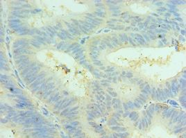 Immunohistochemistry of paraffin-embedded human colon cancer using antibody at 1:100 dilution.