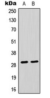 Western blot analysis of CLIC4 expression in Raji (A); HeLa (B) whole cell lysates.