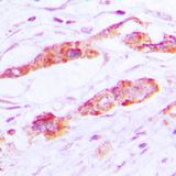 Immunohistochemical analysis of CLIC4 staining in human lung cancer formalin fixed paraffin embedded tissue section. The section was pre-treated using heat mediated antigen retrieval with sodium citrate buffer (pH 6.0). The section was then incubated with the antibody at room temperature and detected using an HRP conjugated compact polymer system. DAB was used as the chromogen. The section was then counterstained with hematoxylin and mounted with DPX.