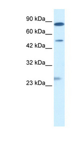 CLIC6 antibody LS-B942 Western blot of Jurkat lysate.  This image was taken for the unconjugated form of this product. Other forms have not been tested.