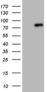 HEK293T cells were transfected with the pCMV6-ENTRY control (Left lane) or pCMV6-ENTRY CLINT1 (Right lane) cDNA for 48 hrs and lysed. Equivalent amounts of cell lysates (5 ug per lane) were separated by SDS-PAGE and immunoblotted with anti-CLINT1.