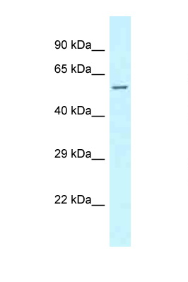 CLINT1 antibody LS-C145830 Western blot of Fetal Lung lysate. Antibody concentration 1 ug/ml.  This image was taken for the unconjugated form of this product. Other forms have not been tested.