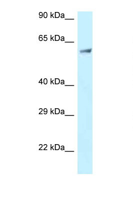 CLINT1 antibody Western blot of Jurkat Cell lysate. Antibody concentration 1 ug/ml.  This image was taken for the unconjugated form of this product. Other forms have not been tested.