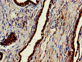 Immunohistochemistry of paraffin-embedded human prostate cancer at dilution of 1:100