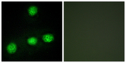 Immunofluorescence analysis of HUVEC cells, using CLK1 Antibody. The picture on the right is blocked with the synthesized peptide.
