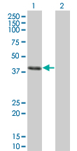 Western Blot analysis of CLN3 expression in transfected 293T cell line by CLN3 monoclonal antibody (M03), clone 1G10.Lane 1: CLN3 transfected lysate(47.623 KDa).Lane 2: Non-transfected lysate.