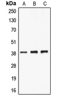 Western blot analysis of CLNS1A expression in A549 (A); K562 (B); Jurkat (C) whole cell lysates.