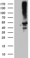 CLP1 Antibody - HEK293T cells were transfected with the pCMV6-ENTRY control. (Left lane) or pCMV6-ENTRY CLP1. (Right lane) cDNA for 48 hrs and lysed