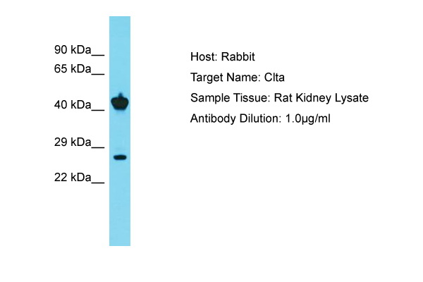 CLTA + CLTB Antibody -  This image was taken for the unconjugated form of this product. Other forms have not been tested.
