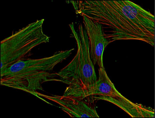 Immunofluorescence staining of clathrin in human primary fibroblasts using anti-clathrin (BF-06; green). Actin cytoskeleton decorated by phalloidin (red) and cell nuclei stained with DAPI (blue).