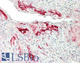Human Tonsil: Formalin-Fixed, Paraffin-Embedded (FFPE)