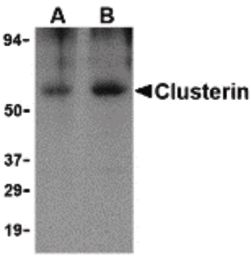 Western blot of Clusterin in human brain tissue lysate with Clusterin body at (A) 0.5 and (B) 1 ug/ml.