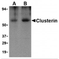 Western blot analysis of Clusterin in human brain tissue lysate with Clusterin body at (A) 0.5 and (B) 1 µg/mL.