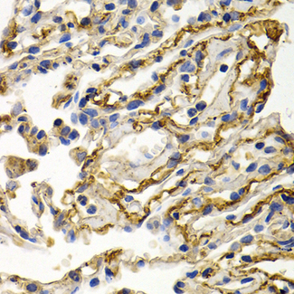 Immunohistochemistry of paraffin-embedded human lung cancer using CLU antibodyat dilution of 1:200 (40x lens).